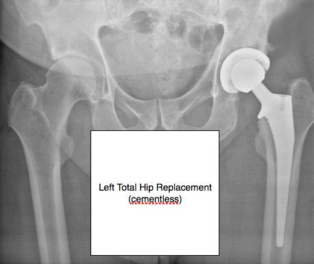 hip-arthritis-img2