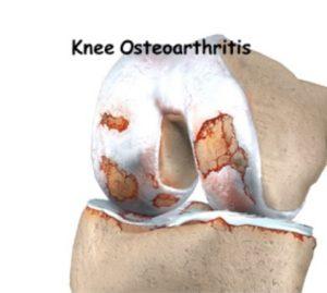 knee-arth-img1