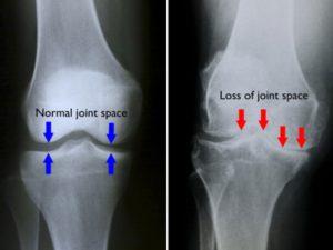 knee-arth-img2