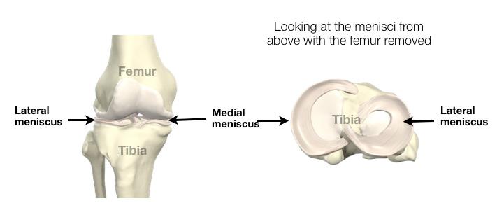 meniscus-img-1