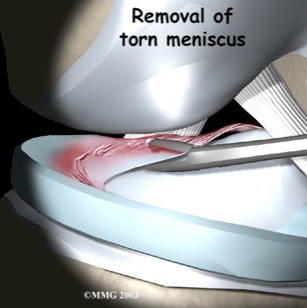meniscus-img-2