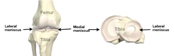 meniscus-img1