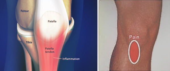 patella-tendon-img1